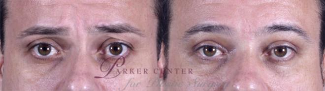 Eyelid Surgery Case 50 Before & After View #1 | Paramus, NJ | Parker Center for Plastic Surgery