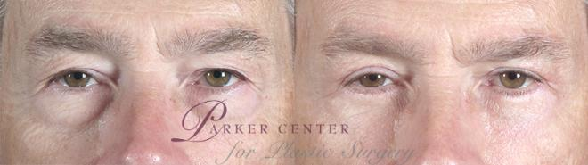 Eyelid Surgery Case 52 Before & After View #1 | Paramus, NJ | Parker Center for Plastic Surgery