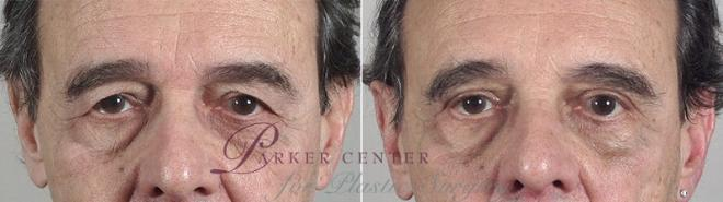 Eyelid Surgery Case 91 Before & After View #1 | Paramus, NJ | Parker Center for Plastic Surgery