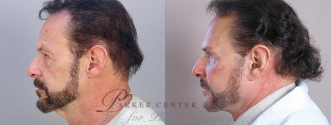 Facelift Case 14 Before & After View #2 | Paramus, NJ | Parker Center for Plastic Surgery