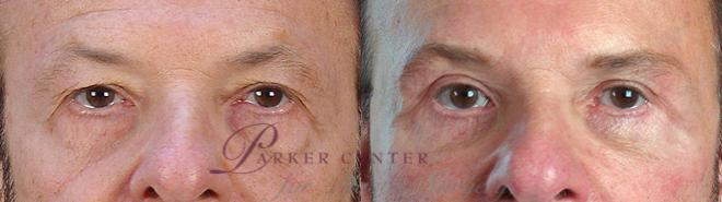 Facelift Case 14 Before & After View #3 | Paramus, NJ | Parker Center for Plastic Surgery