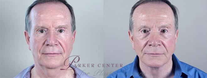 Facelift Case 15 Before & After View #1 | Paramus, NJ | Parker Center for Plastic Surgery