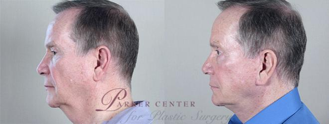 Facelift Case 15 Before & After View #2 | Paramus, NJ | Parker Center for Plastic Surgery