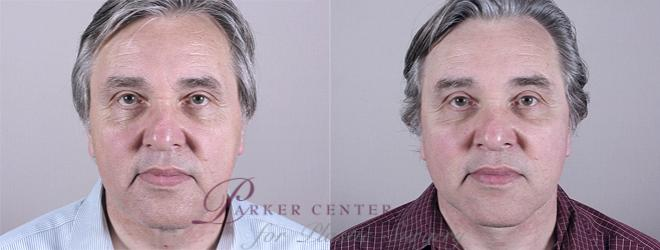 Facelift Case 16 Before & After View #1 | Paramus, NJ | Parker Center for Plastic Surgery