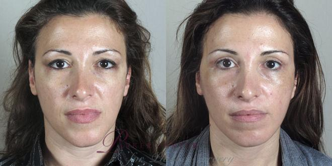 Facelift Case 28 Before & After View #1 | Paramus, NJ | Parker Center for Plastic Surgery