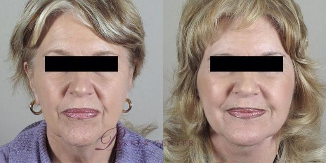 Facelift Case 31 Before & After View #1 | Paramus, NJ | Parker Center for Plastic Surgery