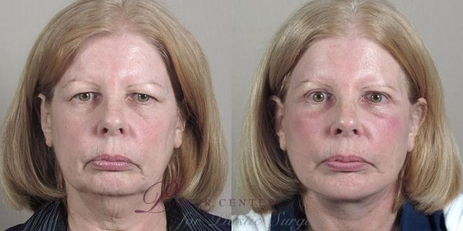 Facelift Case 38 Before & After View #1 | Paramus, NJ | Parker Center for Plastic Surgery