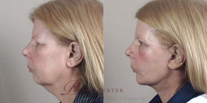Facelift Case 38 Before & After View #2 | Paramus, NJ | Parker Center for Plastic Surgery