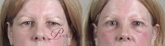 Facelift Case 38 Before & After View #3 | Paramus, NJ | Parker Center for Plastic Surgery