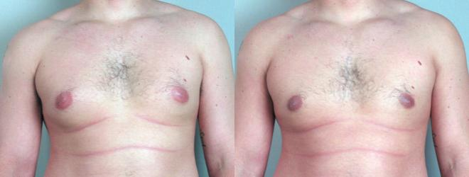 Gynecomastia Surgery Case 617 Before & After View #1 | Paramus, NJ | Parker Center for Plastic Surgery
