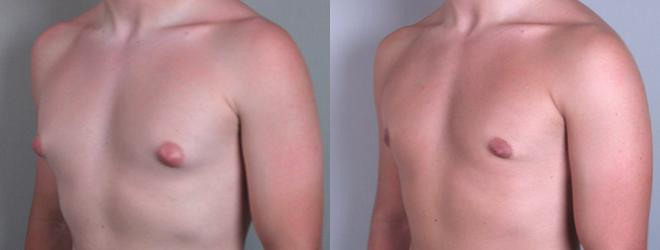 Gynecomastia Surgery Case 618 Before & After View #2 | Paramus, NJ | Parker Center for Plastic Surgery