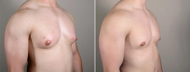Gynecomastia Surgery Case 626 Before & After View #2 | Paramus, NJ | Parker Center for Plastic Surgery