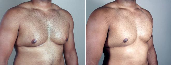 Gynecomastia Surgery Case 634 Before & After View #2 | Paramus, NJ | Parker Center for Plastic Surgery