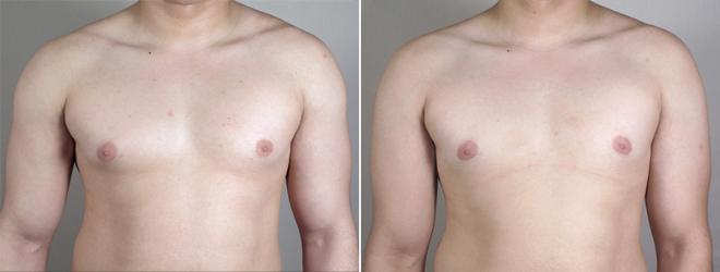 Gynecomastia Surgery Case 638 Before & After View #1 | Paramus, NJ | Parker Center for Plastic Surgery