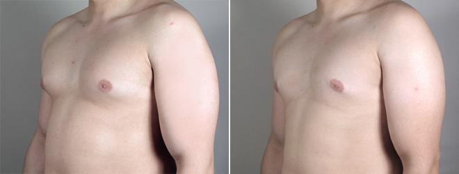 Gynecomastia Surgery Case 638 Before & After View #2 | Paramus, NJ | Parker Center for Plastic Surgery
