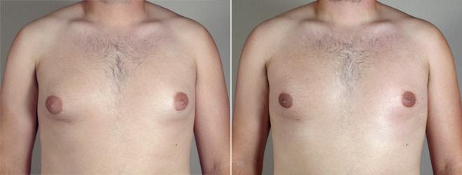 Gynecomastia Surgery Case 640 Before & After View #1 | Paramus, NJ | Parker Center for Plastic Surgery