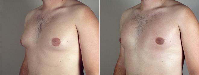 Gynecomastia Surgery Case 640 Before & After View #2 | Paramus, NJ | Parker Center for Plastic Surgery