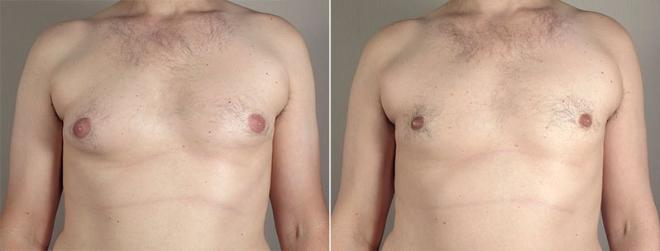 Gynecomastia Surgery Case 648 Before & After View #1 | Paramus, NJ | Parker Center for Plastic Surgery