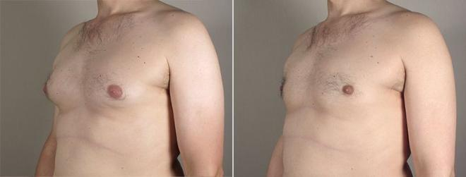 Gynecomastia Surgery Case 648 Before & After View #2 | Paramus, NJ | Parker Center for Plastic Surgery