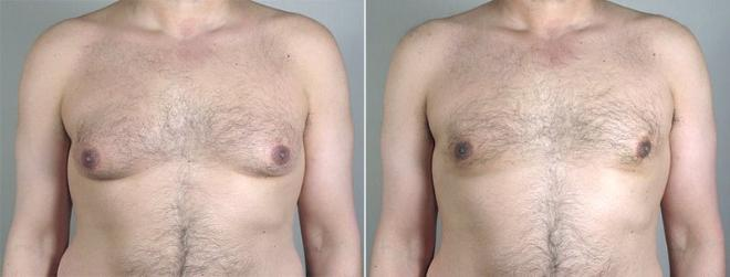 Gynecomastia Surgery Case 654 Before & After View #1 | Paramus, NJ | Parker Center for Plastic Surgery