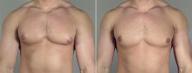 Gynecomastia Surgery Case 655 Before & After View #1 | Paramus, NJ | Parker Center for Plastic Surgery