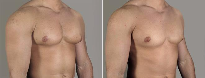 Gynecomastia Surgery Case 655 Before & After View #2 | Paramus, NJ | Parker Center for Plastic Surgery