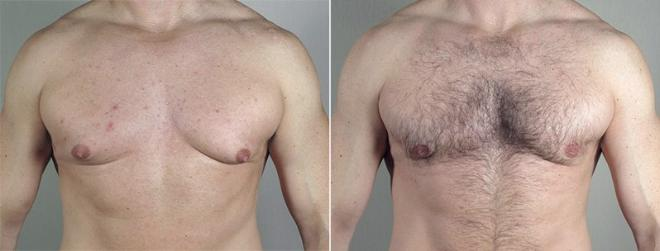 Gynecomastia Surgery Case 659 Before & After View #1 | Paramus, NJ | Parker Center for Plastic Surgery