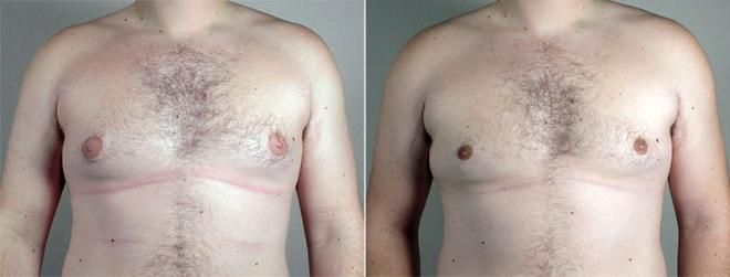 Gynecomastia Surgery Case 664 Before & After View #2 | Paramus, NJ | Parker Center for Plastic Surgery