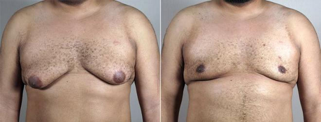 Gynecomastia Surgery Case 671 Before & After View #1 | Paramus, NJ | Parker Center for Plastic Surgery