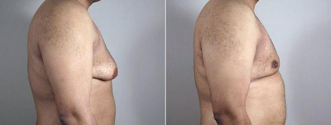 Gynecomastia Surgery Case 671 Before & After View #3 | Paramus, NJ | Parker Center for Plastic Surgery