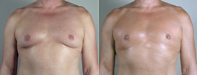 Gynecomastia Surgery Case 674 Before & After View #1 | Paramus, NJ | Parker Center for Plastic Surgery