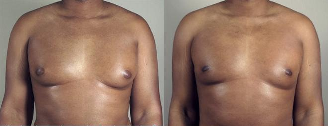 Gynecomastia Surgery Case 940 Before & After View #5 | Paramus, NJ | Parker Center for Plastic Surgery
