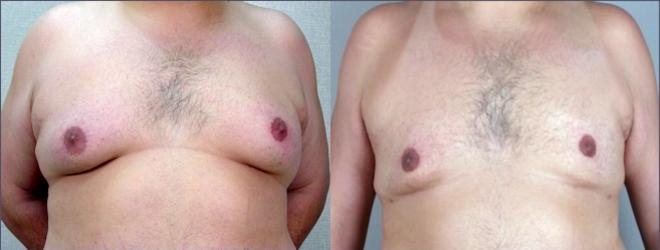 Gynecomastia Surgery Case 942 Before & After View #5 | Paramus, NJ | Parker Center for Plastic Surgery
