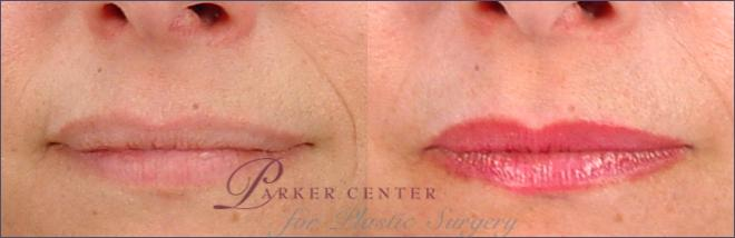 Lip Enhancement Case 260 Before & After View #1 | Paramus, NJ | Parker Center for Plastic Surgery