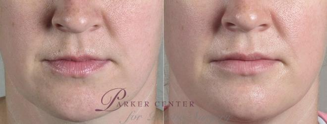 Lip Enhancement Case 264 Before & After View #1 | Paramus, NJ | Parker Center for Plastic Surgery