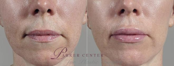 Lip Enhancement Case 265 Before & After View #1 | Paramus, NJ | Parker Center for Plastic Surgery