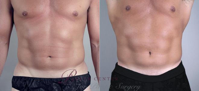 Liposuction Case 758 Before & After View #1 | Paramus, NJ | Parker Center for Plastic Surgery