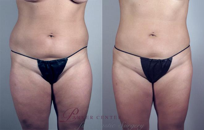 Liposuction Case 776 Before & After View #1 | Paramus, NJ | Parker Center for Plastic Surgery