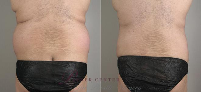 Liposuction Case 792 Before & After View #1 | Paramus, NJ | Parker Center for Plastic Surgery