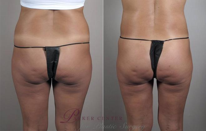 Liposuction Case 799 Before & After View #1 | Paramus, NJ | Parker Center for Plastic Surgery