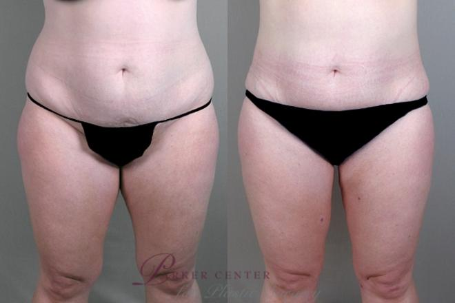 Liposuction Case 930 Before & After View #5 | Paramus, NJ | Parker Center for Plastic Surgery