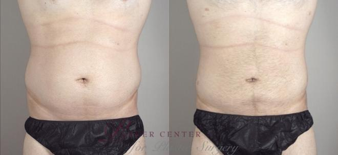 Liposuction Case 948 Before & After View #5 | Paramus, NJ | Parker Center for Plastic Surgery