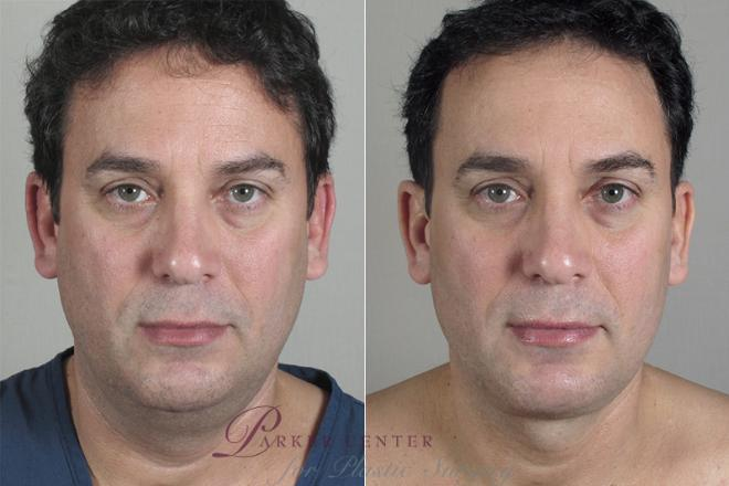 Neck Contouring Case 215 Before & After View #1 | Paramus, NJ | Parker Center for Plastic Surgery