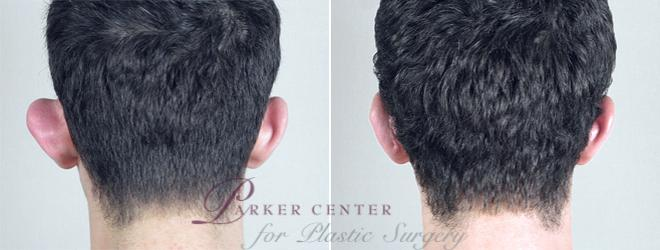 Otoplasty Case 235 Before & After View #1 | Paramus, NJ | Parker Center for Plastic Surgery
