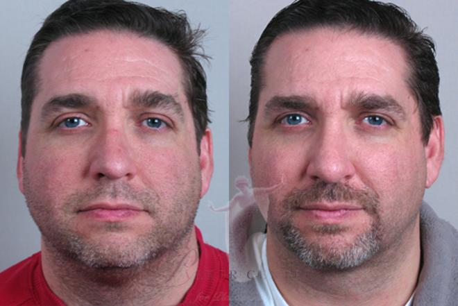 Rhinoplasty Case 132 Before & After View #1 | Paramus, NJ | Parker Center for Plastic Surgery