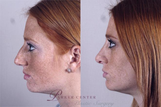 Rhinoplasty Case 142 Before & After View #2 | Paramus, NJ | Parker Center for Plastic Surgery