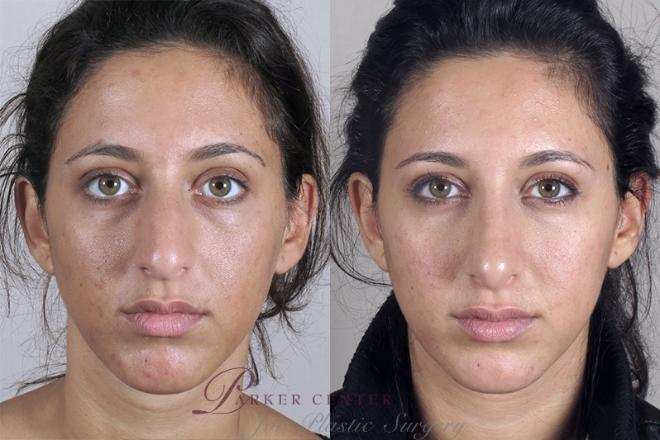 Rhinoplasty Case 149 Before & After View #1 | Paramus, NJ | Parker Center for Plastic Surgery