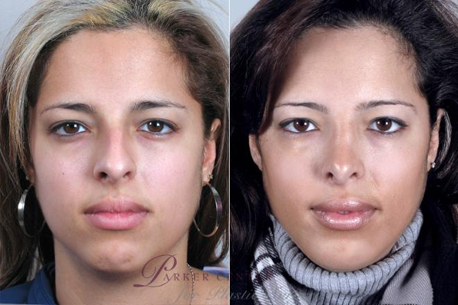 Rhinoplasty Case 155 Before & After View #1 | Paramus, NJ | Parker Center for Plastic Surgery