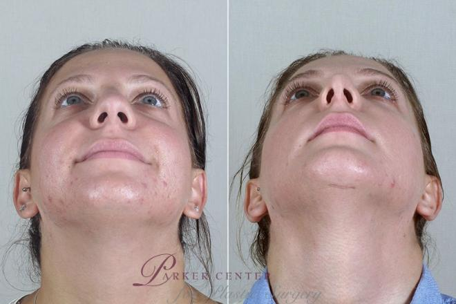 Rhinoplasty Case 180 Before & After View #2 | Paramus, NJ | Parker Center for Plastic Surgery