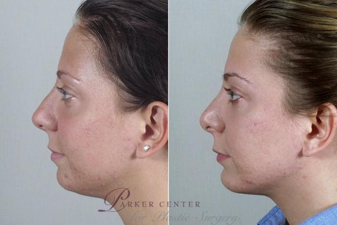 Rhinoplasty Case 180 Before & After View #3 | Paramus, NJ | Parker Center for Plastic Surgery